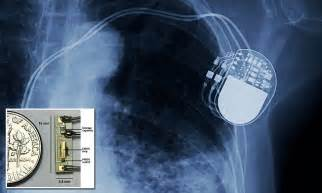 Battery-less pacemaker to end battery replacement surgery