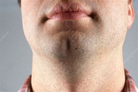 Cleft Chin - Stock Image - C003/4461 - Science Photo Library