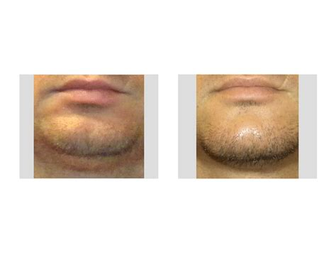 chin cleft reduction Archives